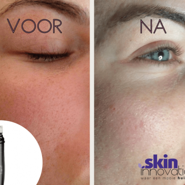 Wat is de Genosys DermaFix Pen?