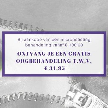 Microneedling inclusief gratis oogbehandeling!