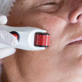 8 dingen die je moet weten over microneedling!