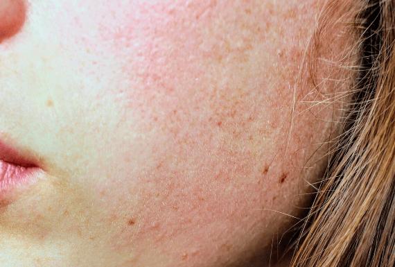 Rode/ gevoelige huid
